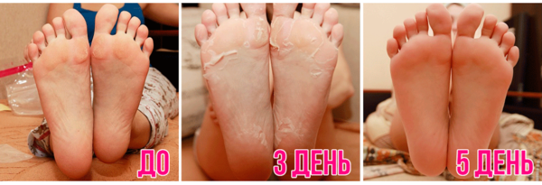 Фото стоп до, в процессе и после применения носочков для педикюра